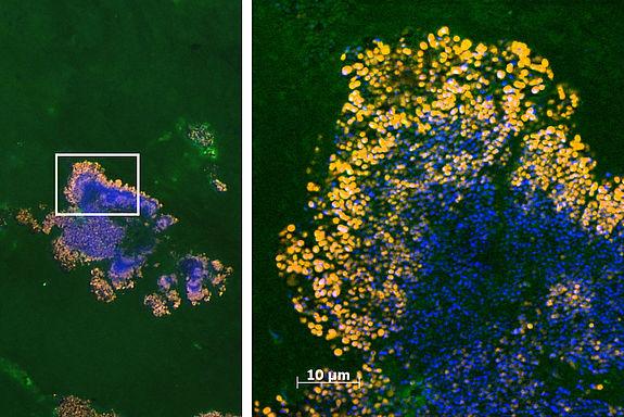 Zwei bunte Aufnahmen. Links: Bakterienansammlung, rechts: Nahaufnahme einer Region mit besonders vielen Bakterien.