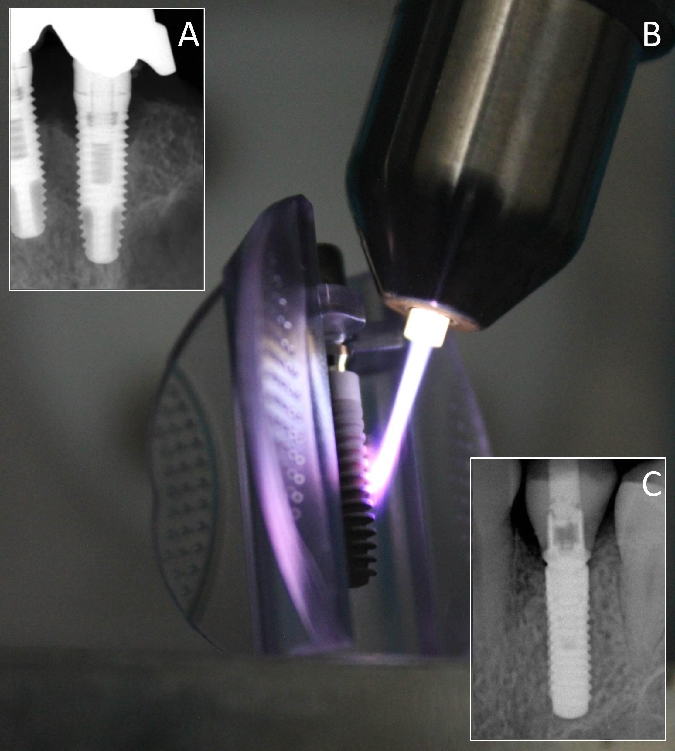 3 Aufnahmen zeigen Zahnimplantat mit Knochendefekt, während und nach erfolgreicher Behandlung